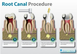 Root-canal-procedure
